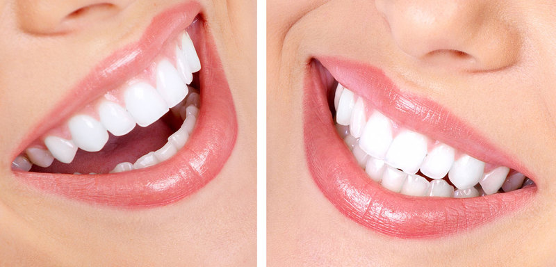 Dental Surgery Tooth Implants By Partha Dental Clinic