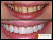 Best Dental Clinic in Bhubaneswar for Laser Dentistry,  Teeth Whitening