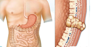 Gastrointestinal Stromal Tumor (GIST)